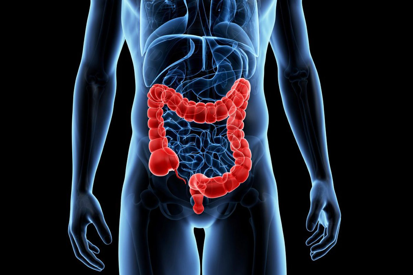 Colon cancer rates rising among younger white adults - and falling among blacks