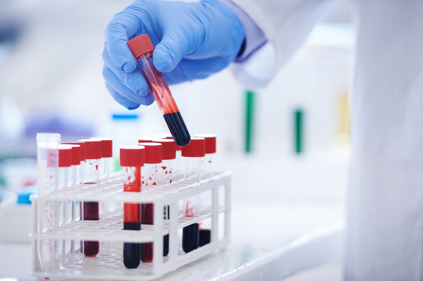 Could a simple blood sample be used to detect tiny cancers before they grow? Billions are being invested to find out.