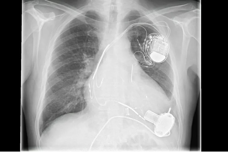 A pacemaker is shown in a chest x-ray.