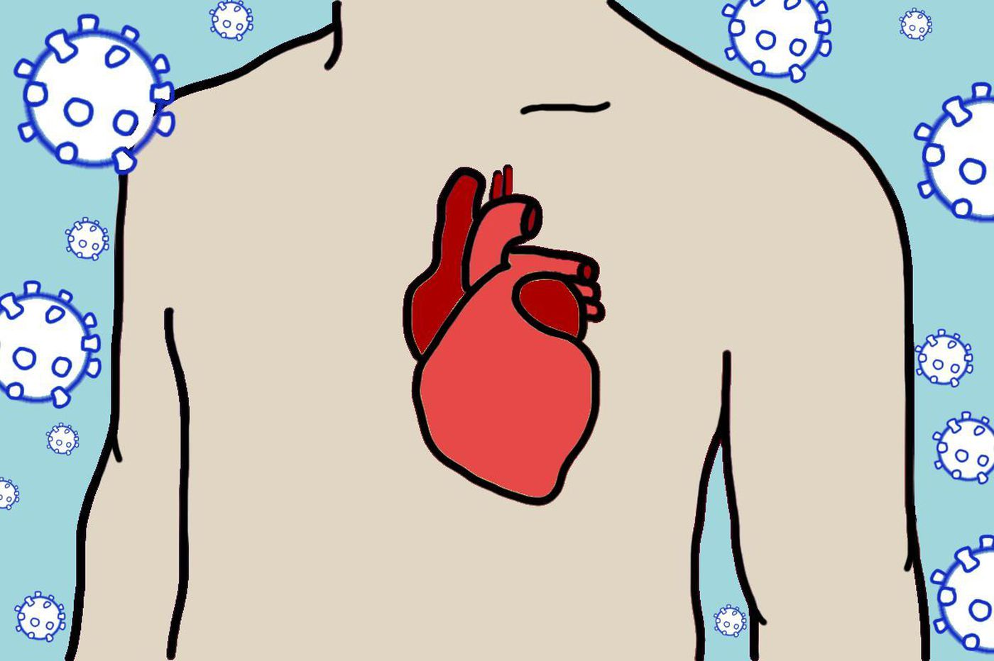 COVID-19 can stop the heart, and a defibrillator may not help, Penn study finds
