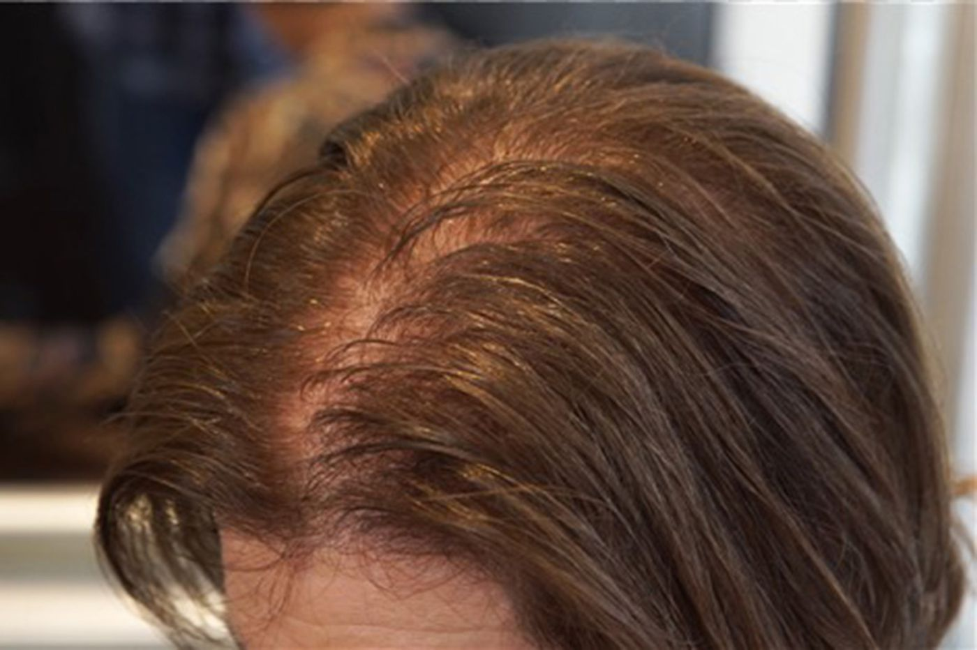 As they age, women lose their hair, too  Which treatments really work?