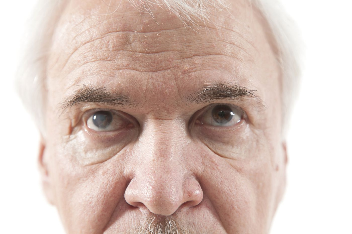 Q&A: Can cataracts really affect how you see color?