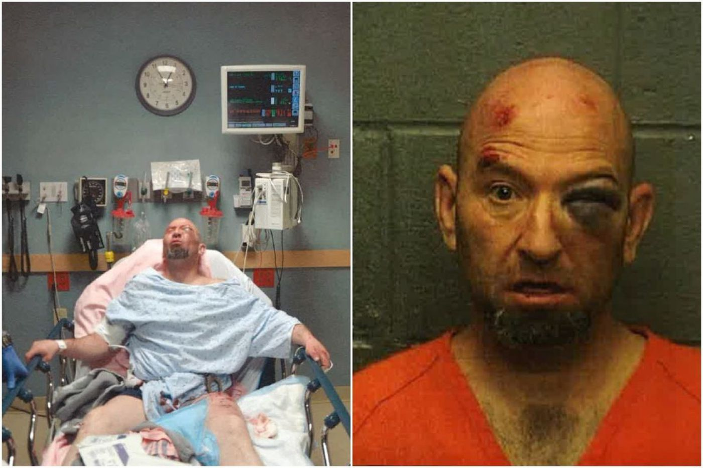 Jury: Atlantic City police to blame for attack