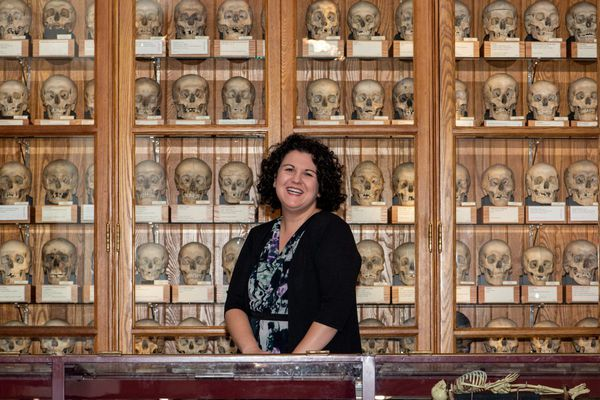 Mutter Museum plans to double space and create endowed programs and staff positions