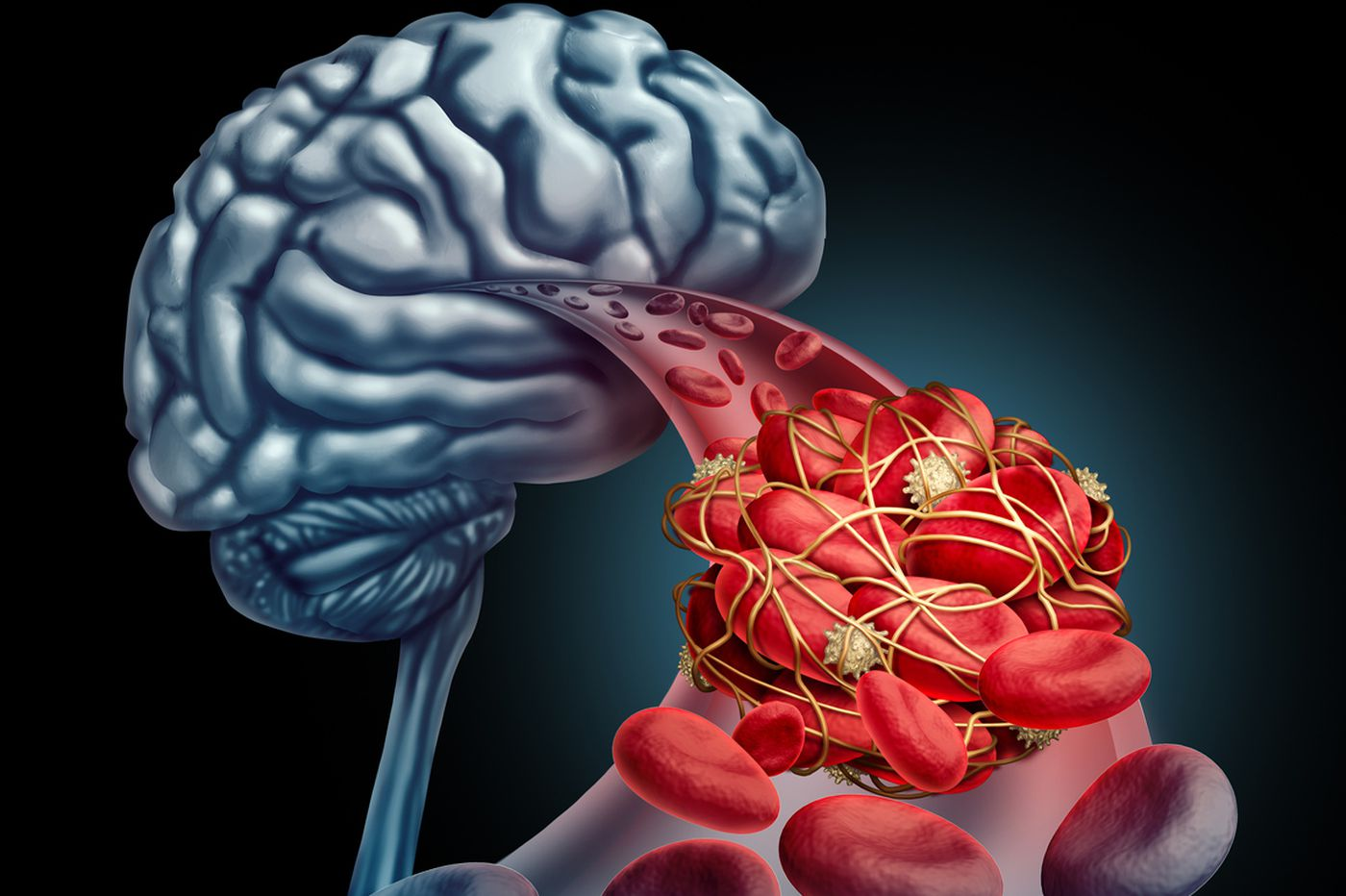 Q&A: Treatment options for stroke