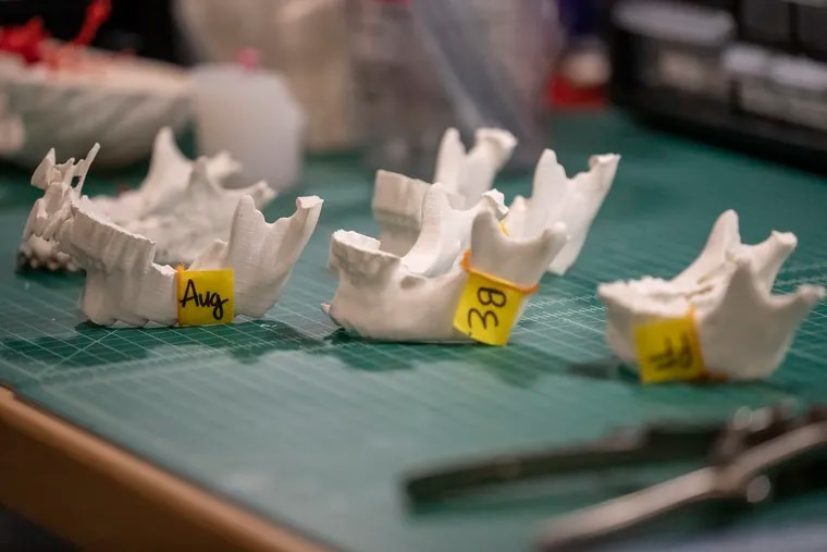 Using a 3D printer, Jefferson University researchers modeled the jawbones of Haitian patients whose faces were disfigured by tumors. Surgeons traveled to Haiti last week to perform the surgeries.