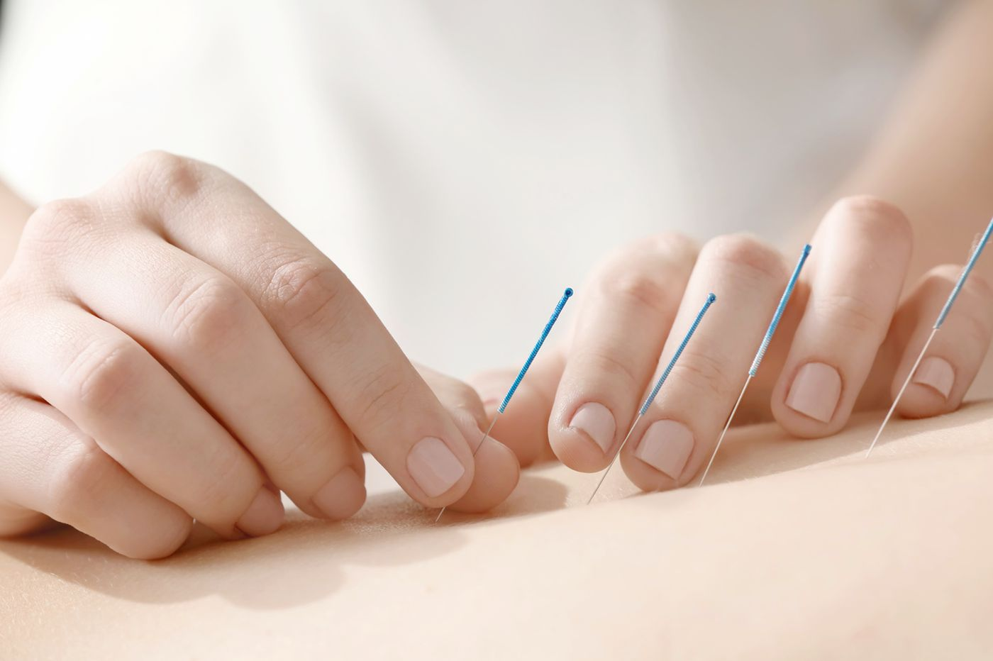 Acupuncture is a popular offering at fertility clinics, but it doesn't improve fertility, study says