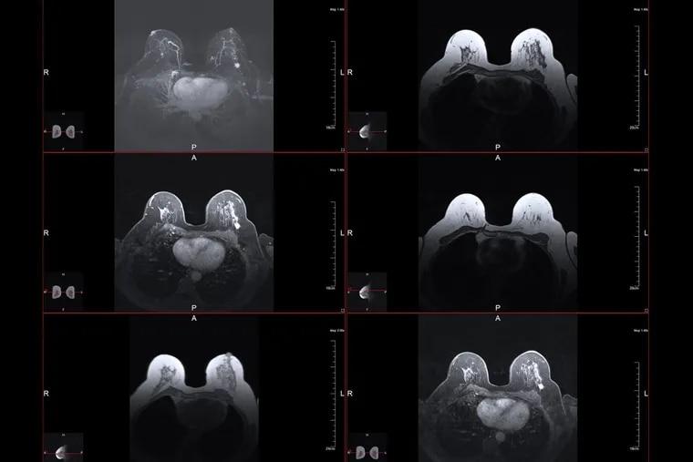 Breast magnetic resonance image.