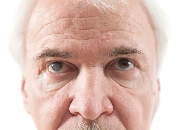 By the time most people turn 65 years old they will develop cataracts.