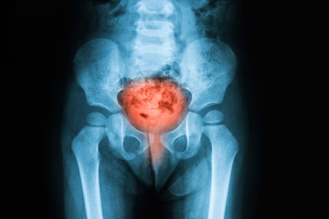 Why are urinary tract infections such a big deal for the elderly?