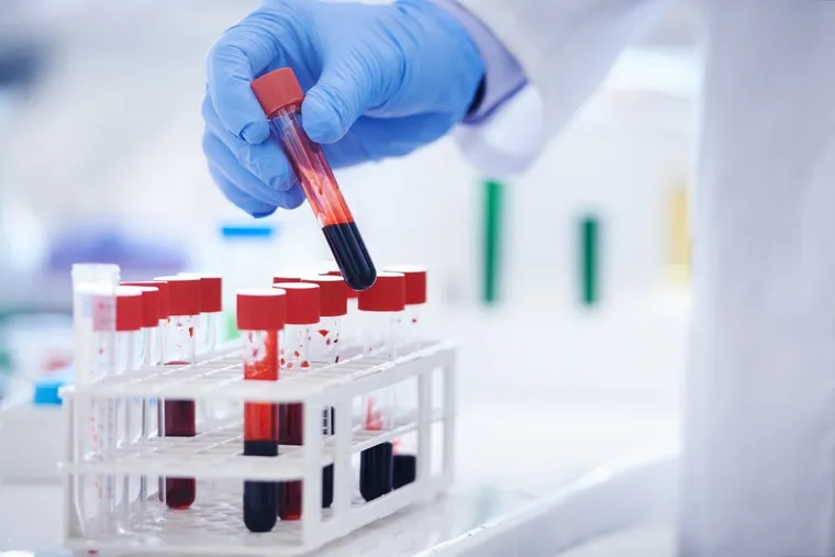 The records exposed in a Philadelphia Department of Health report included the results of individuals' blood tests that identified the hepatitis B and C viruses.