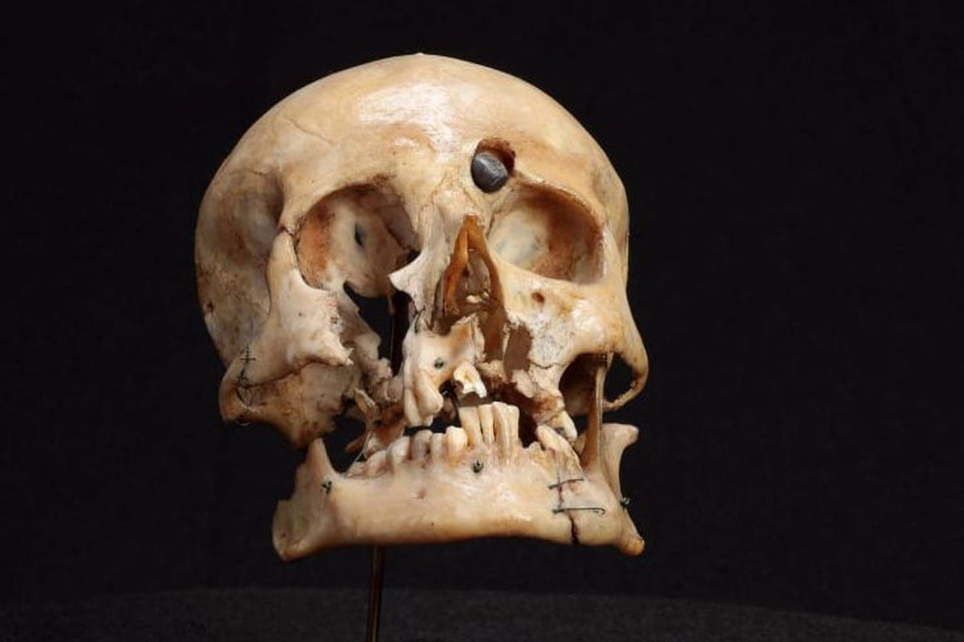Controversy erupts over WWI Australian soldier's skull at Mutter Museum
