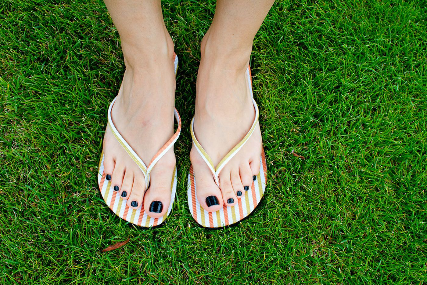 The serious dangers of flip flops