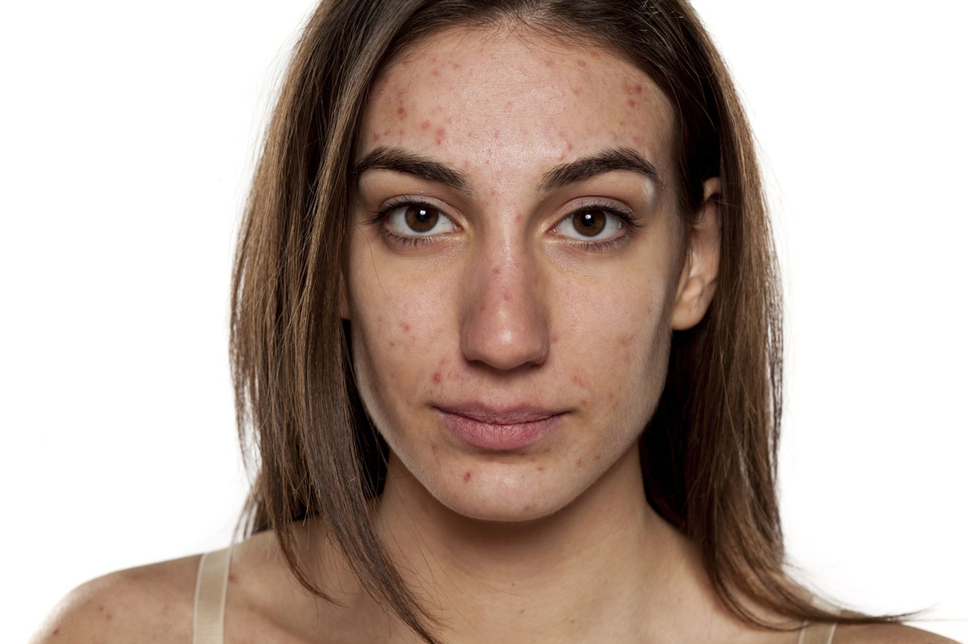The real reasons we get adult acne and how to treat it