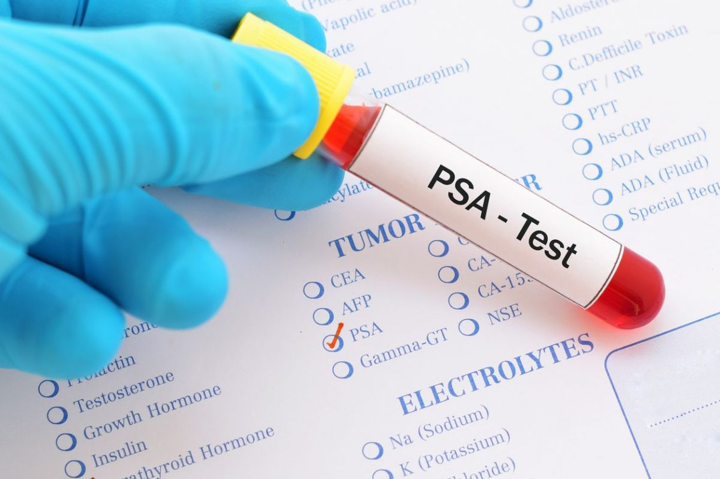 Is prostate cancer screening right for you? Let's do the numbers