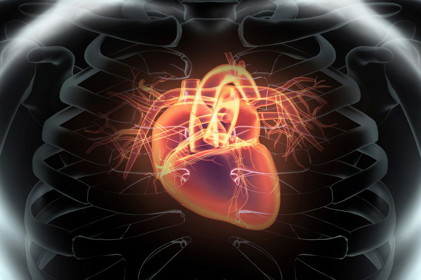 Q&A: What is cardiogenic shock, and why should I care?