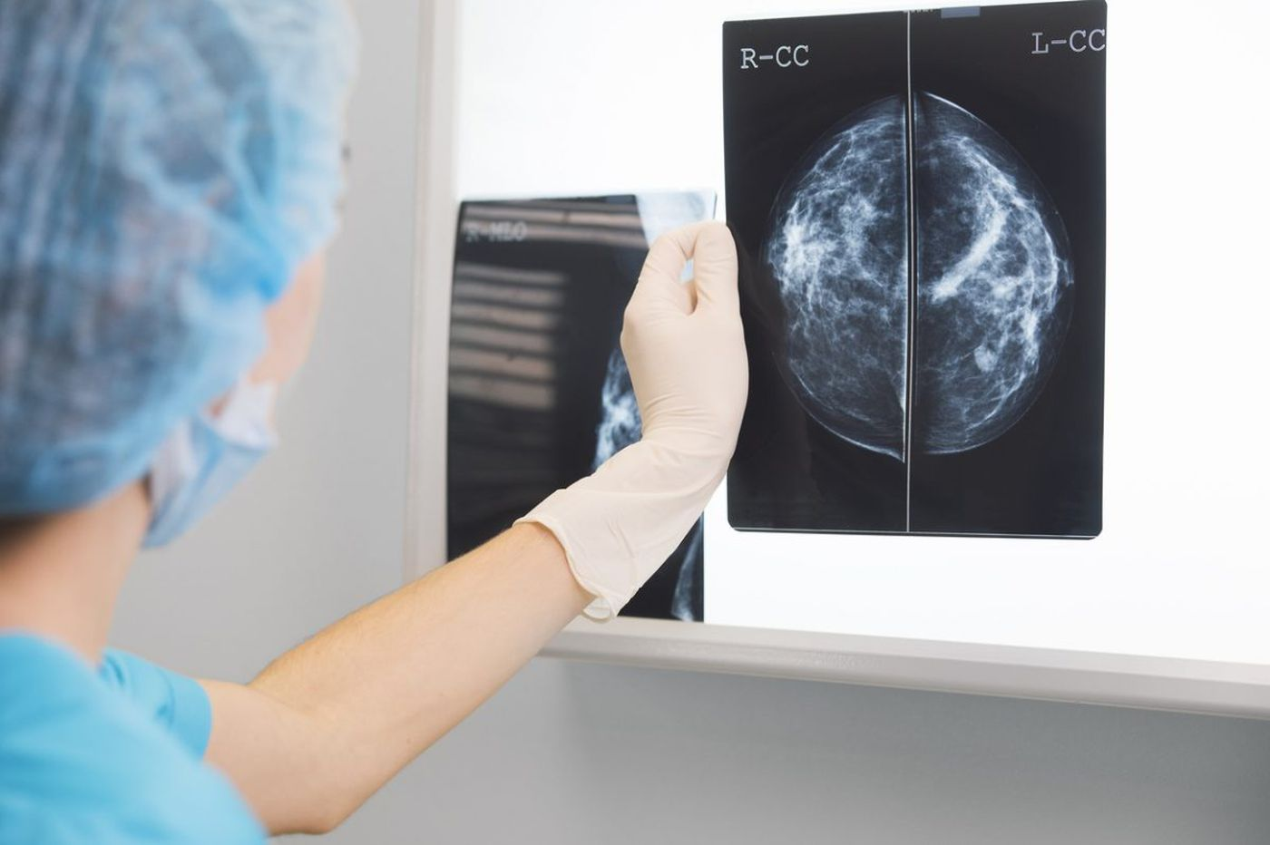 Will a 3-D breast cancer screening save your life?
