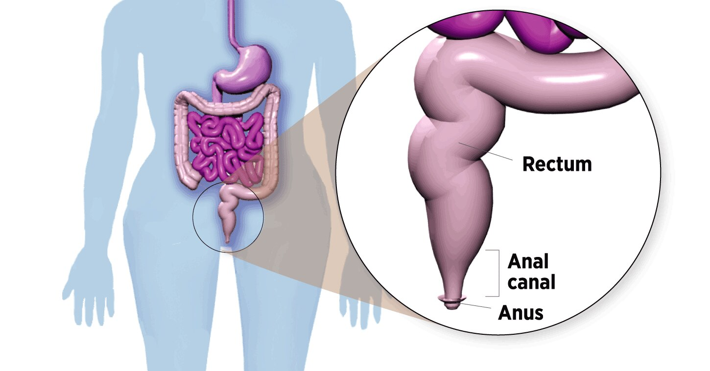 Anal cancer is on the rise, especially in women  Should they