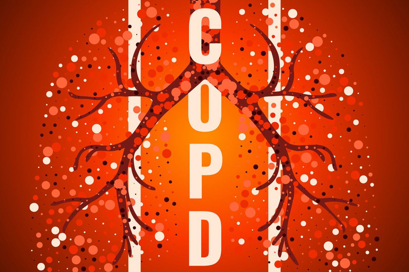 Q&A: What do I need to know about COPD?