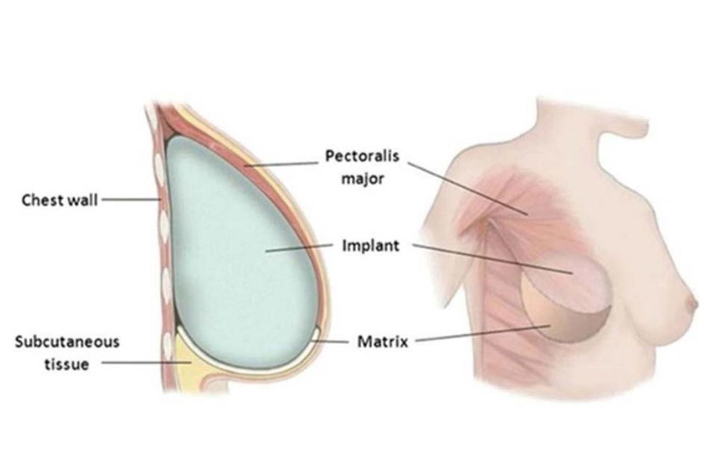 Breast reconstruction mesh may increase risks after mastectomy. FDA looks for answers.