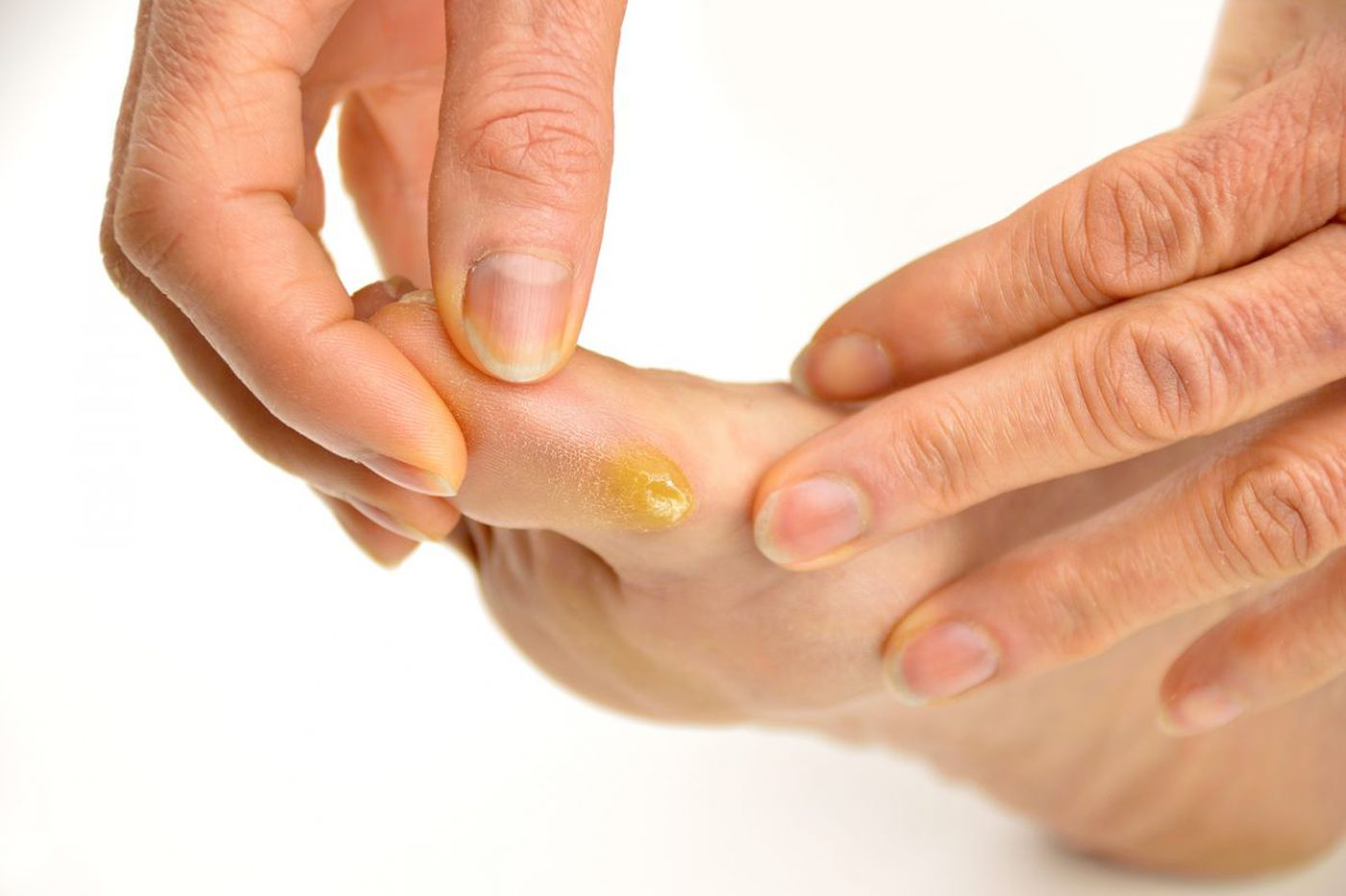 He thought it was a blister, but it was a deadly bacteria consuming his foot