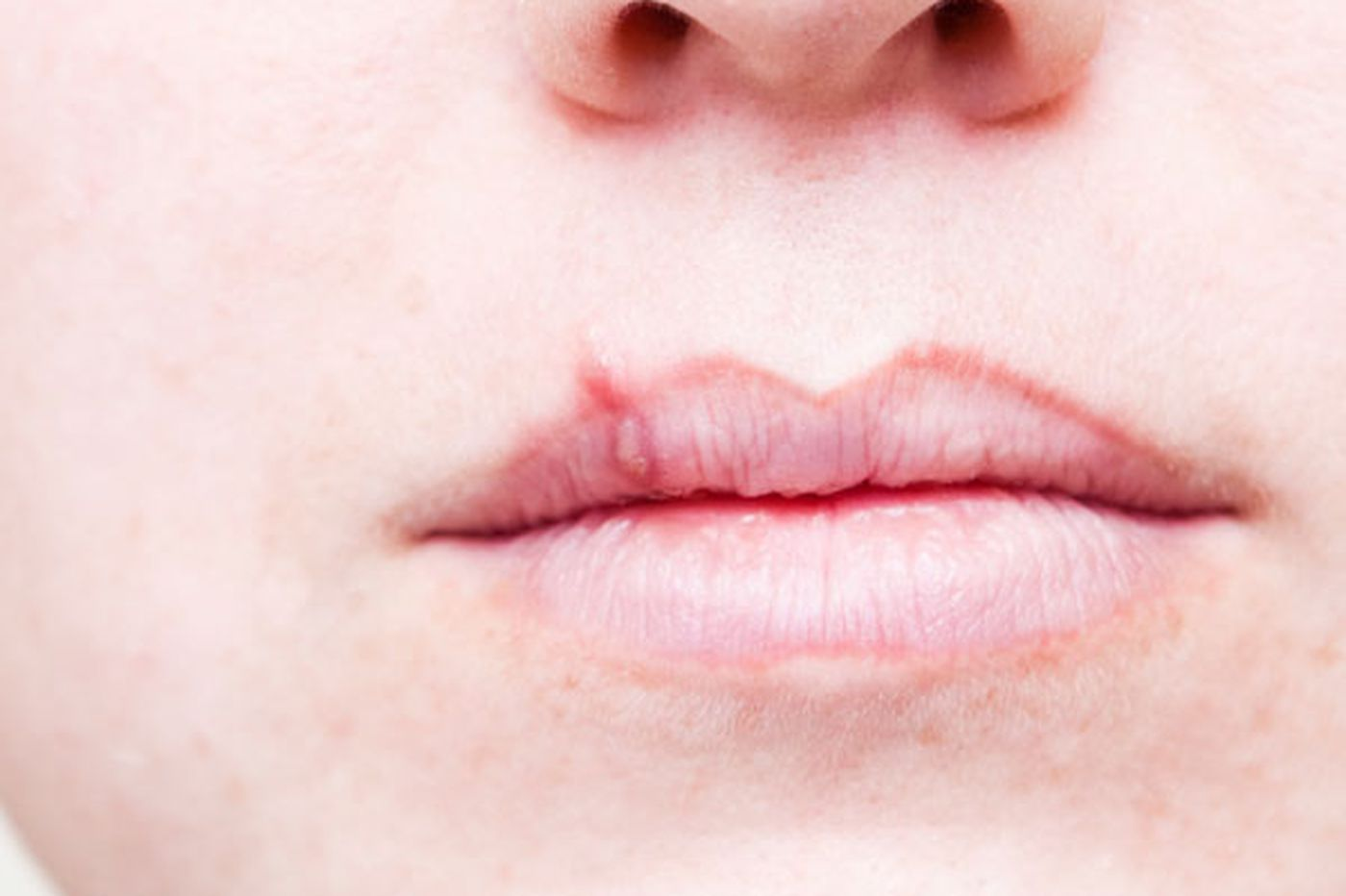Ask Dr. H: Mysterious cure for cold sores