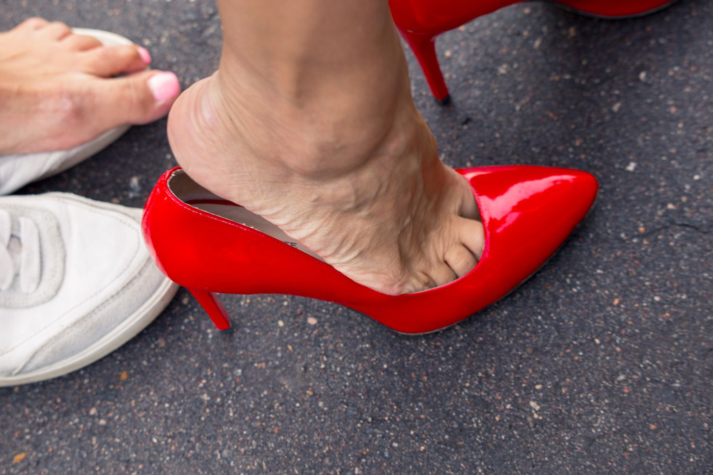 How to choose shoes now to avoid foot pain and surgery later