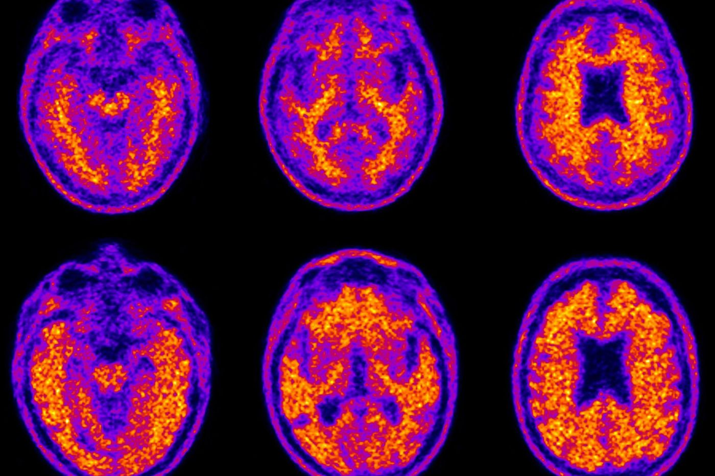 Financial problems may start earlier in dementia than many think, Duke study finds