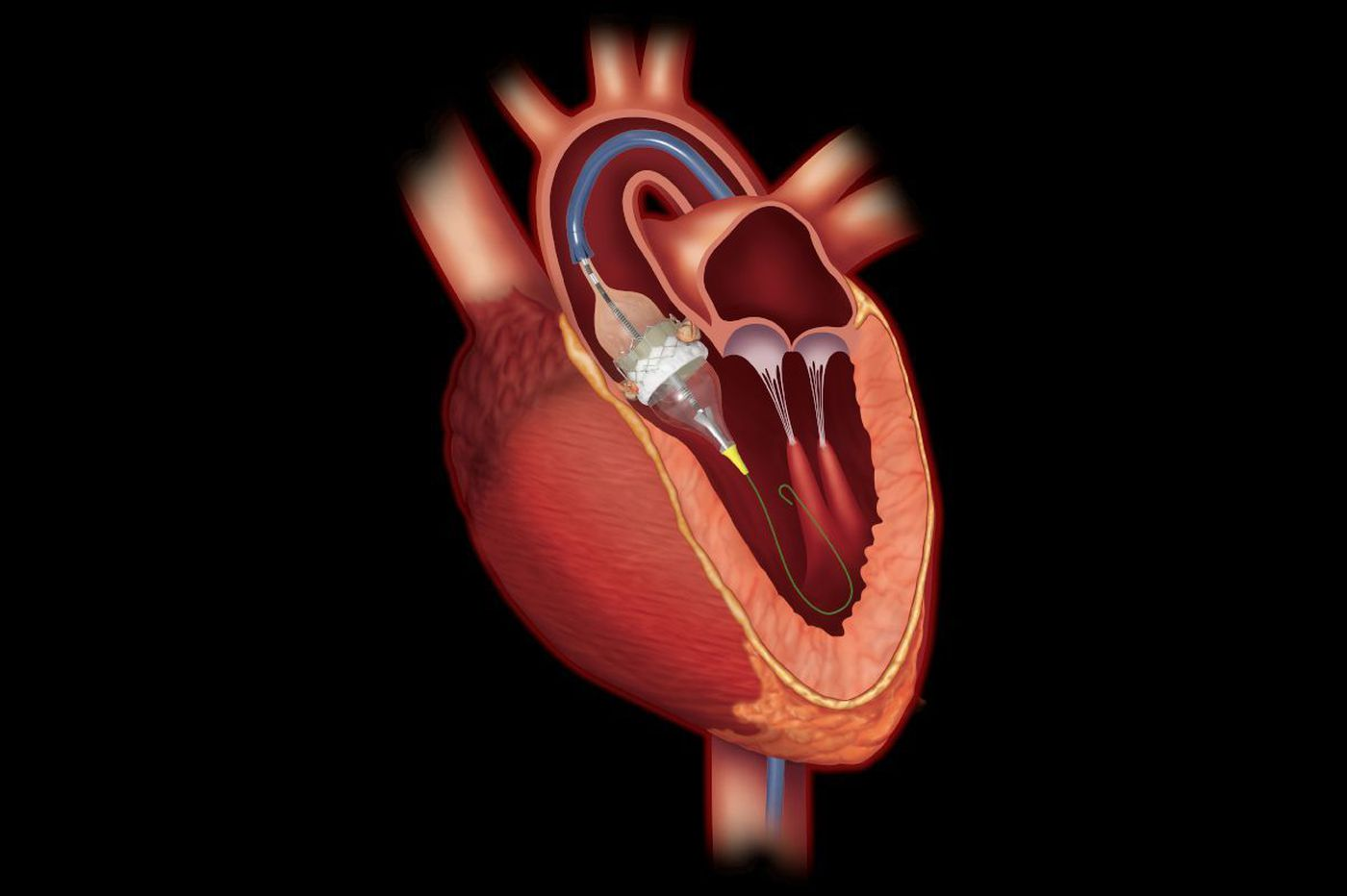 Using catheter to replace heart valve better than open-heart surgery, studies suggest