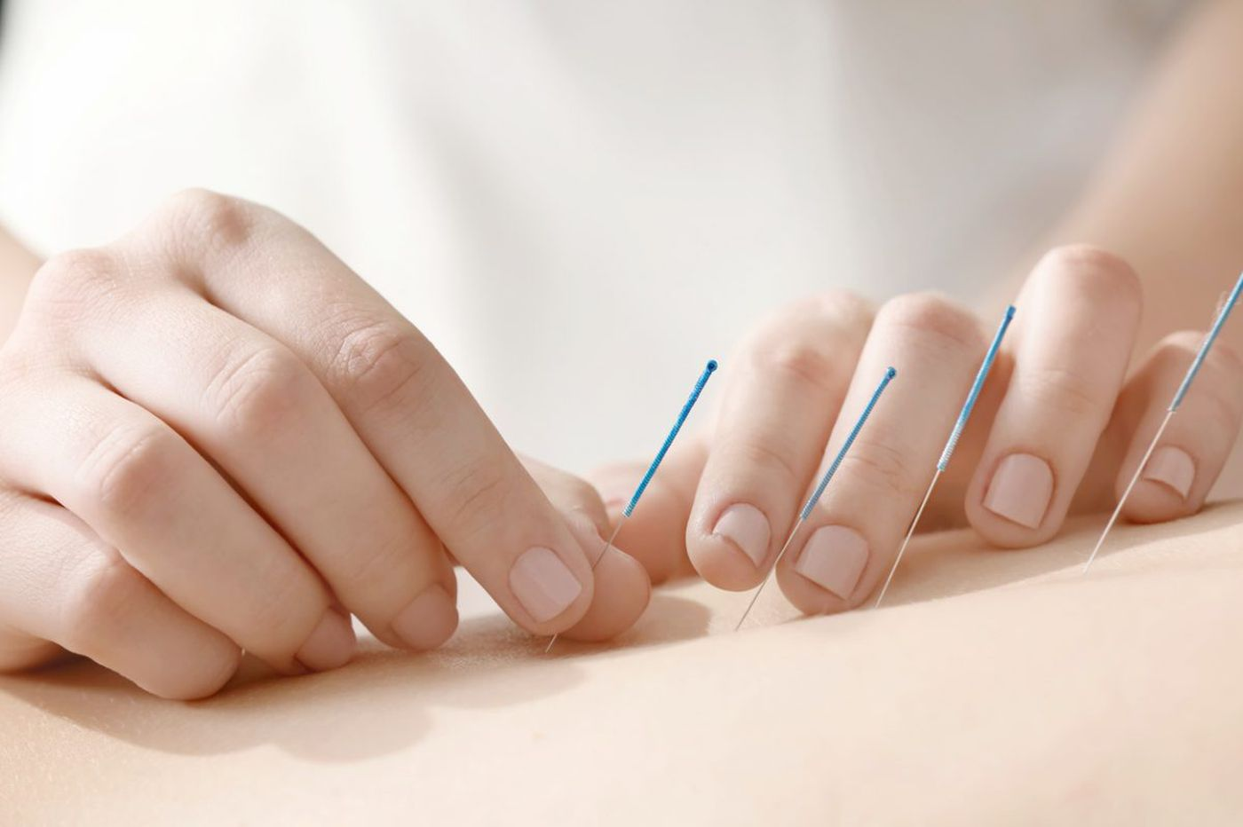 Interested in acupuncture? Tips, recommendations to find the best Philly area practitioners