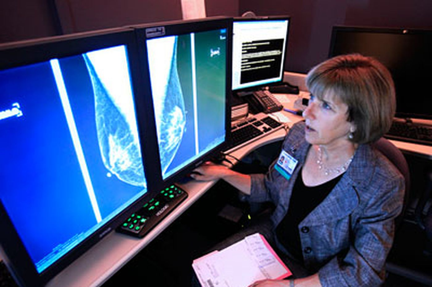 Bone drug boosts breast cancer survival
