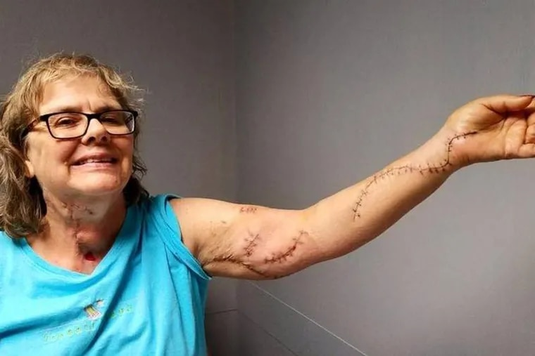 Nurse Elise Wilson was stabbed multiple times in July by a patient unhappy with his medical care.