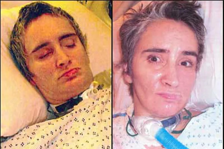 The Hospital of the University of Pennsylvania released photos of an unidentified patient, unconscious for nearly four months, in hopes that someone will recognize her.