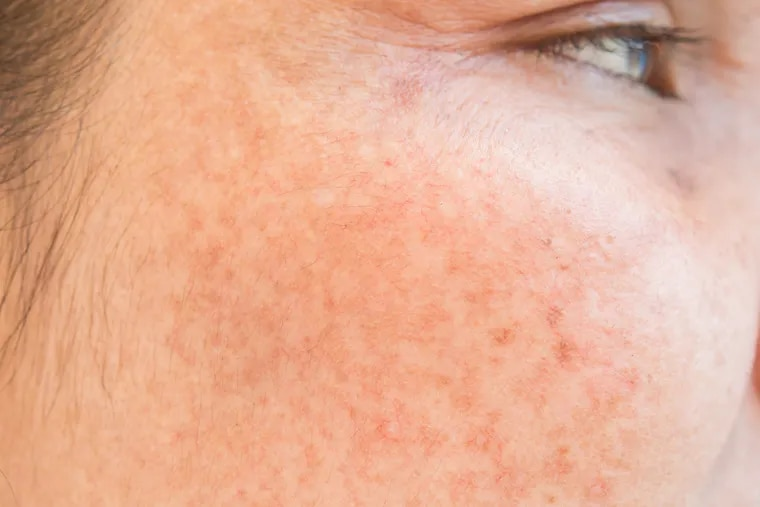 Q&A: What causes dark spots on skin and what works to fade them?
