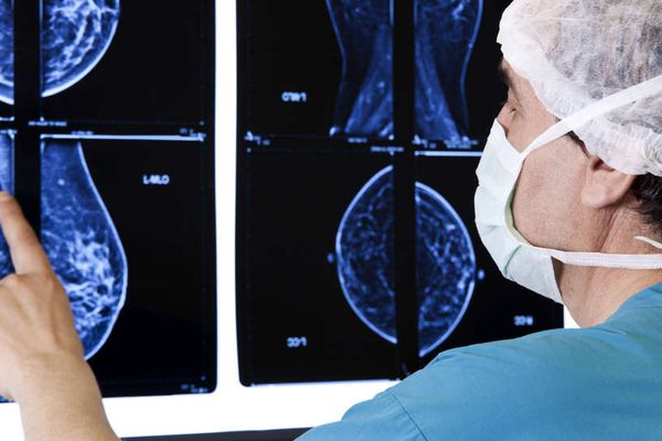 Online tool can help Pennsylvania cancer patients decide where to have surgery