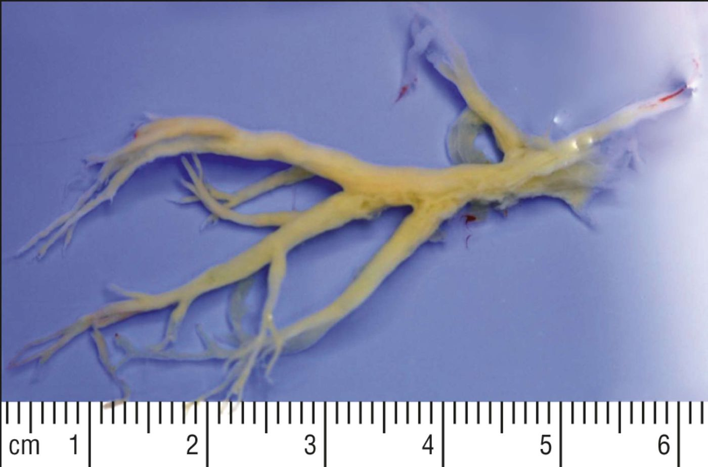 Philly docs solve riddle of patients who cough up 'tree branches'
