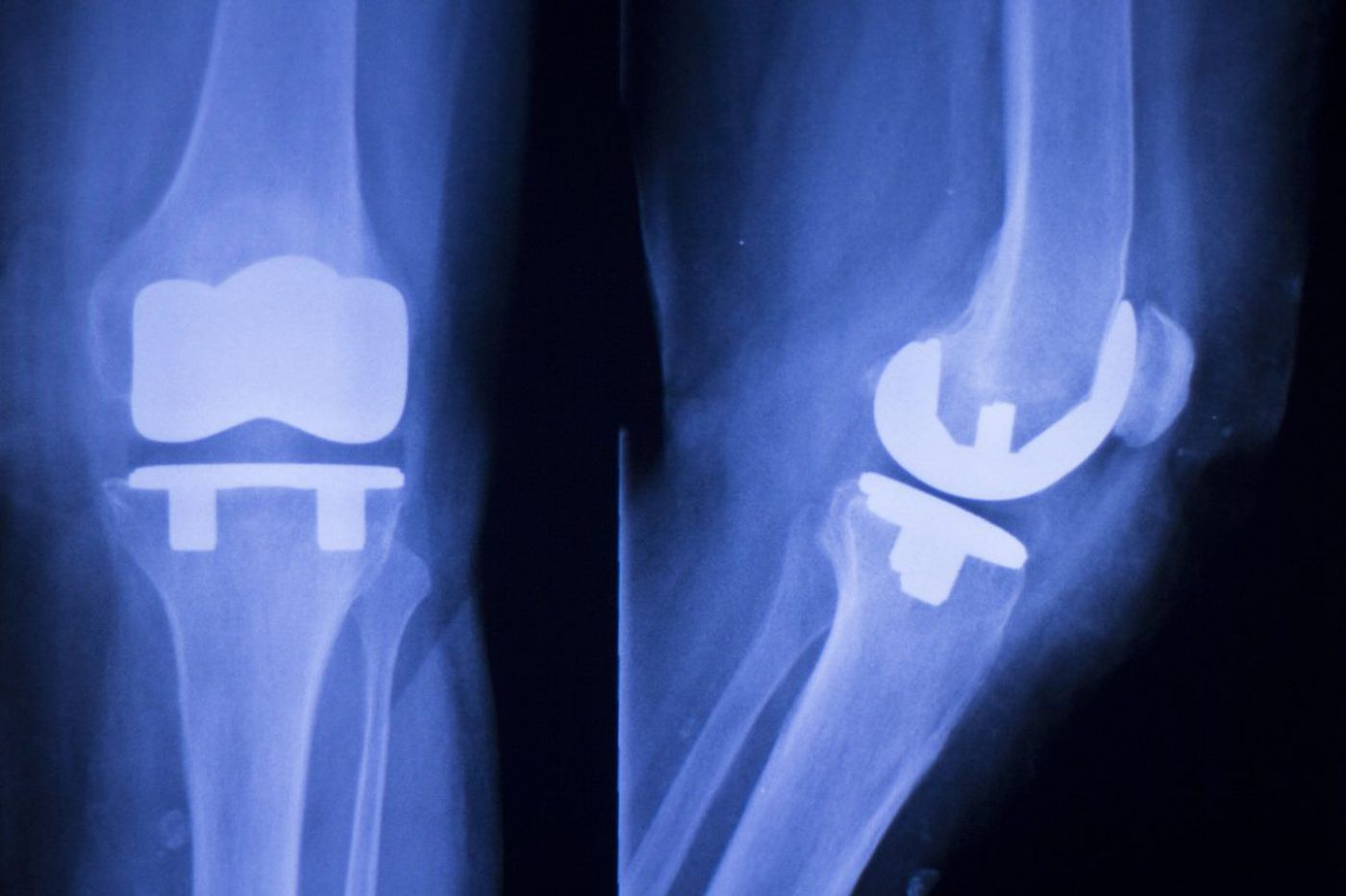 How high-tech genomics - and simple aspirin - could make your joint replacement better