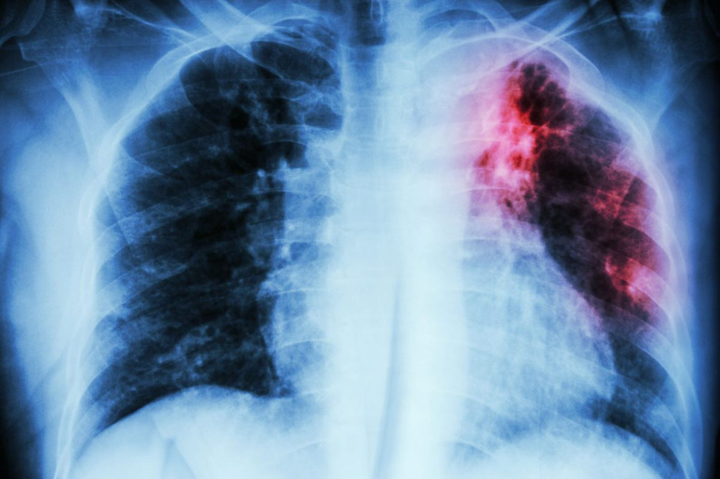 Dentists keep dying of this deadly lung disease. The CDC can't figure out why.