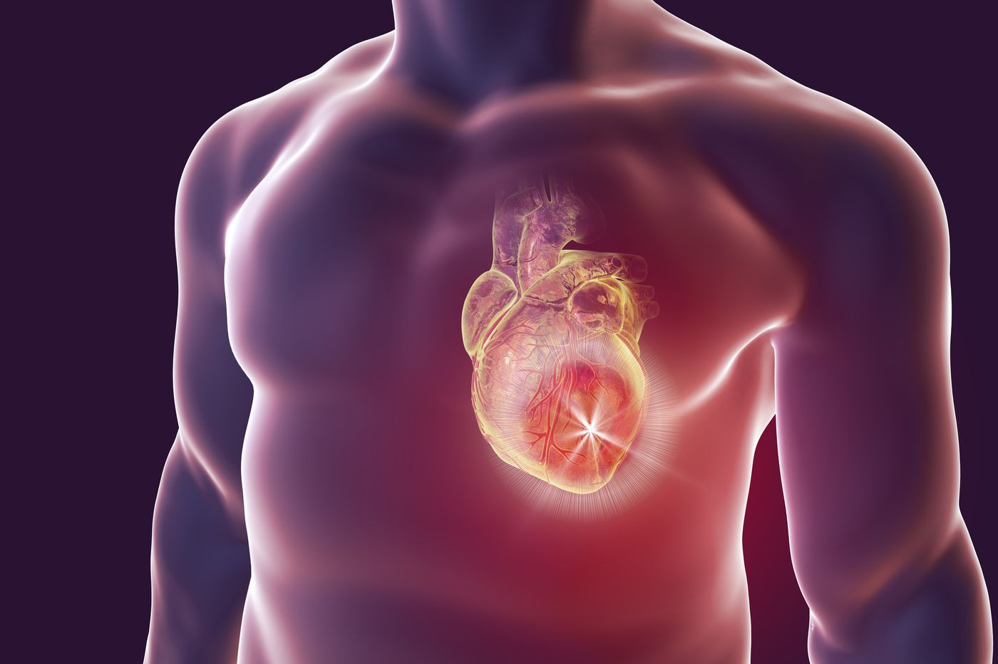 Understanding who's at risk for sudden cardiac death