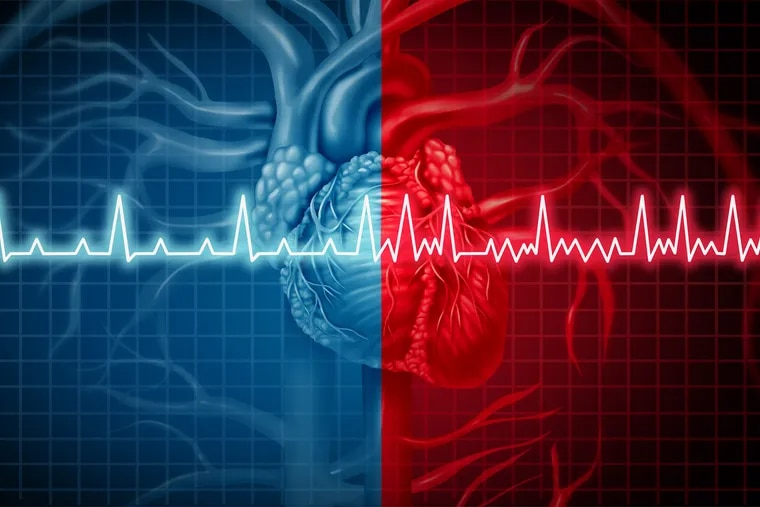 Atrial fibrillation is an irregular heart rhythm that leads to an increased risk of having a stroke.