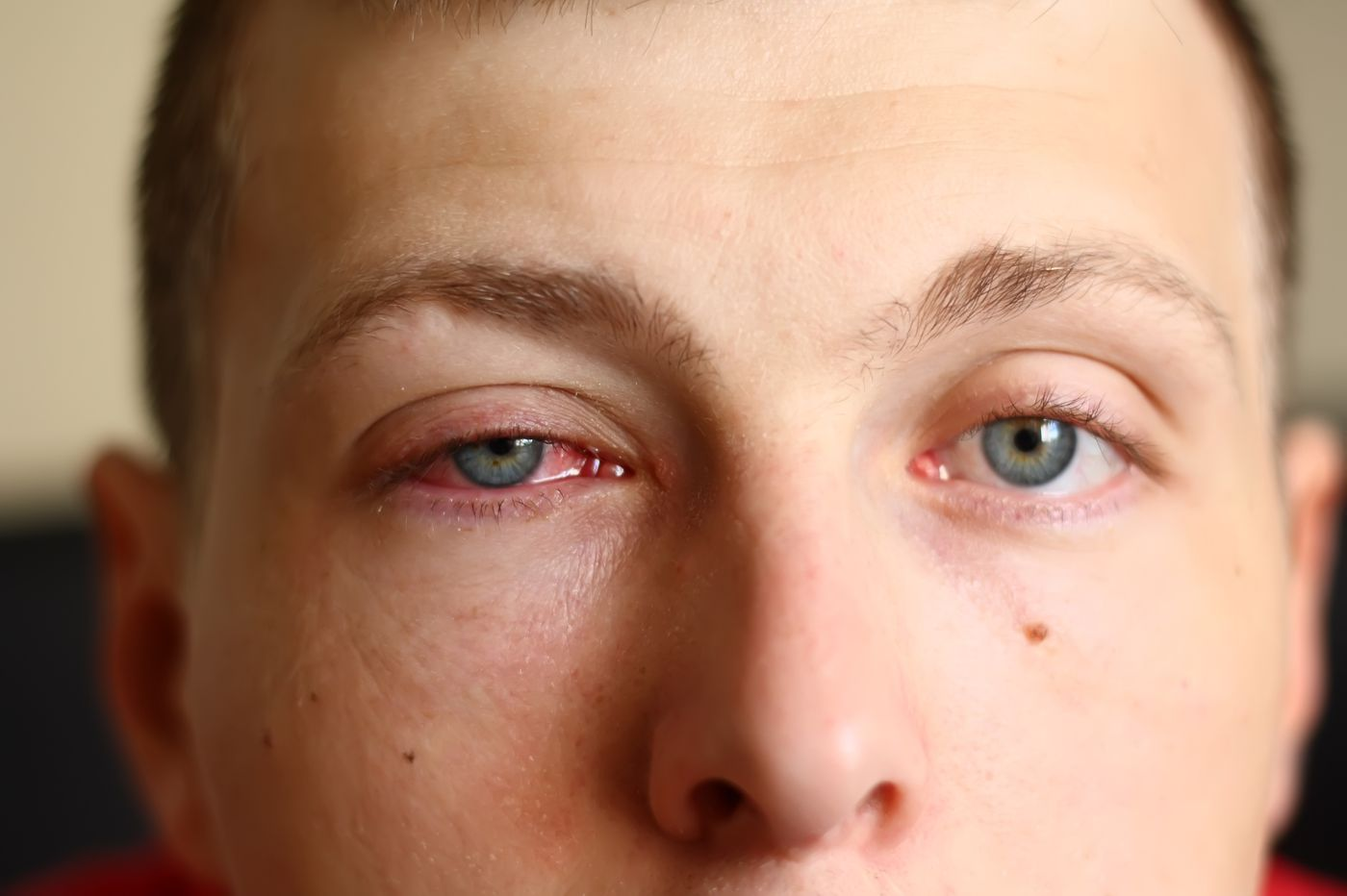 Pink eye a possible early warning sign of coronavirus, eye doctors report