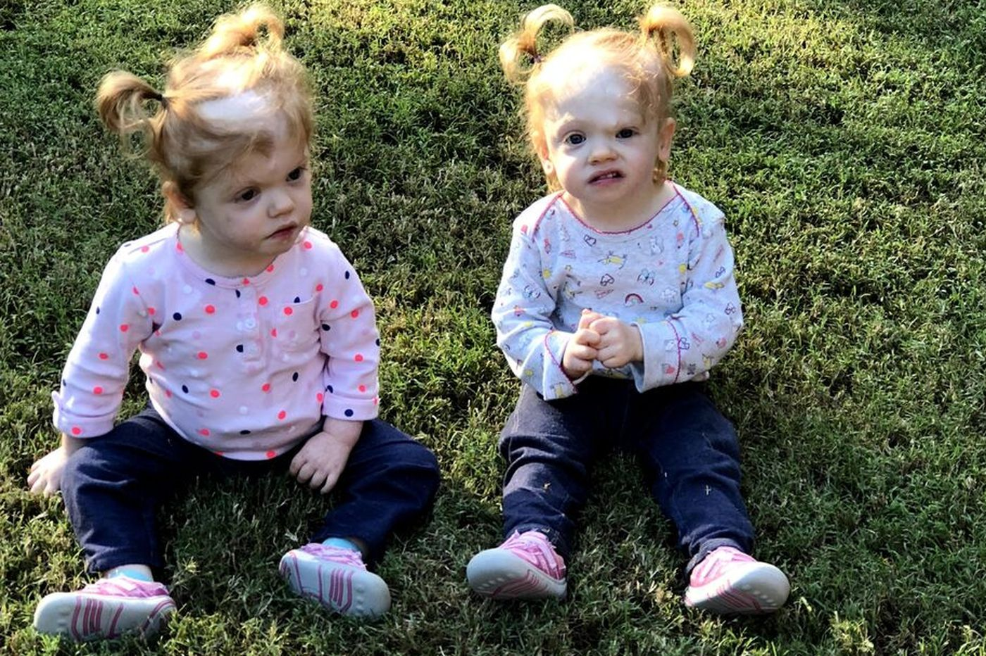 Twins born joined at the head exceeding expectations 19 months after separation at CHOP