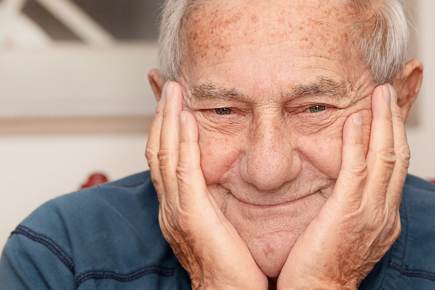 Have Medicare? The shingles vaccine will cost you.