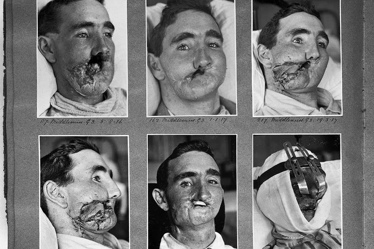 Republish this article<br/> Republish Republish our articles for free, online or in print, under Creative Commons license. Reconstructive surgery carried out between 1916 and 1918