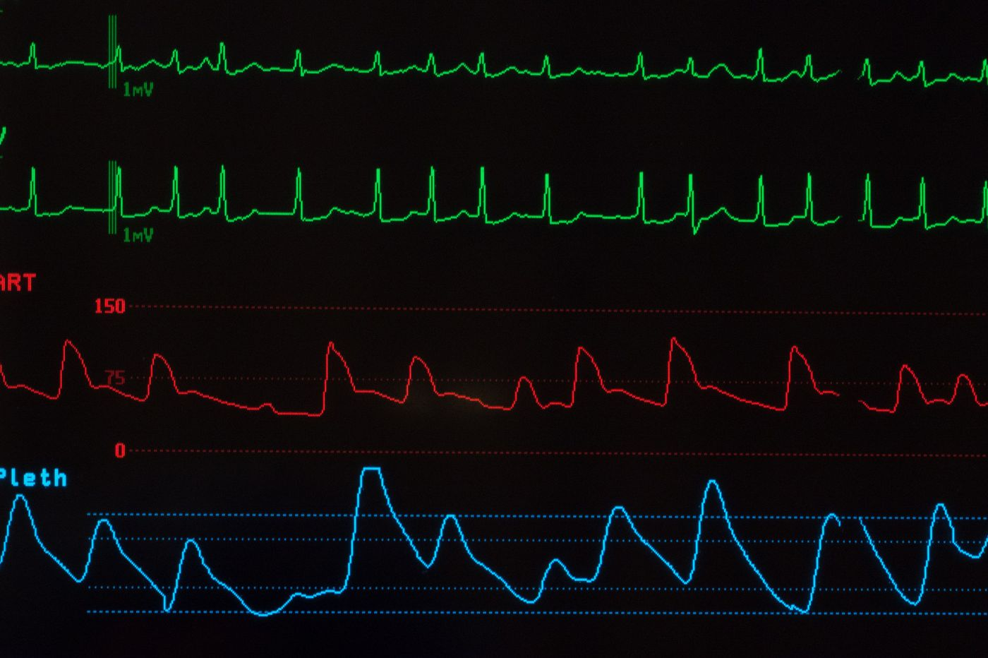 Watchman cardiac device: Another side of the story