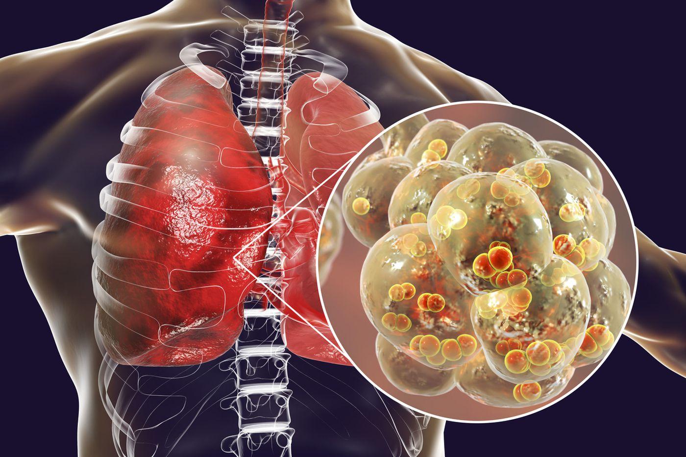 penyakit-yang-di-alami-masyarakat-di-daerah-cina-pneumonia-wuhan