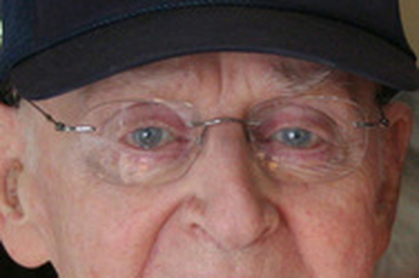 Sherwood V. Cohen | Ophthalmologist, 71