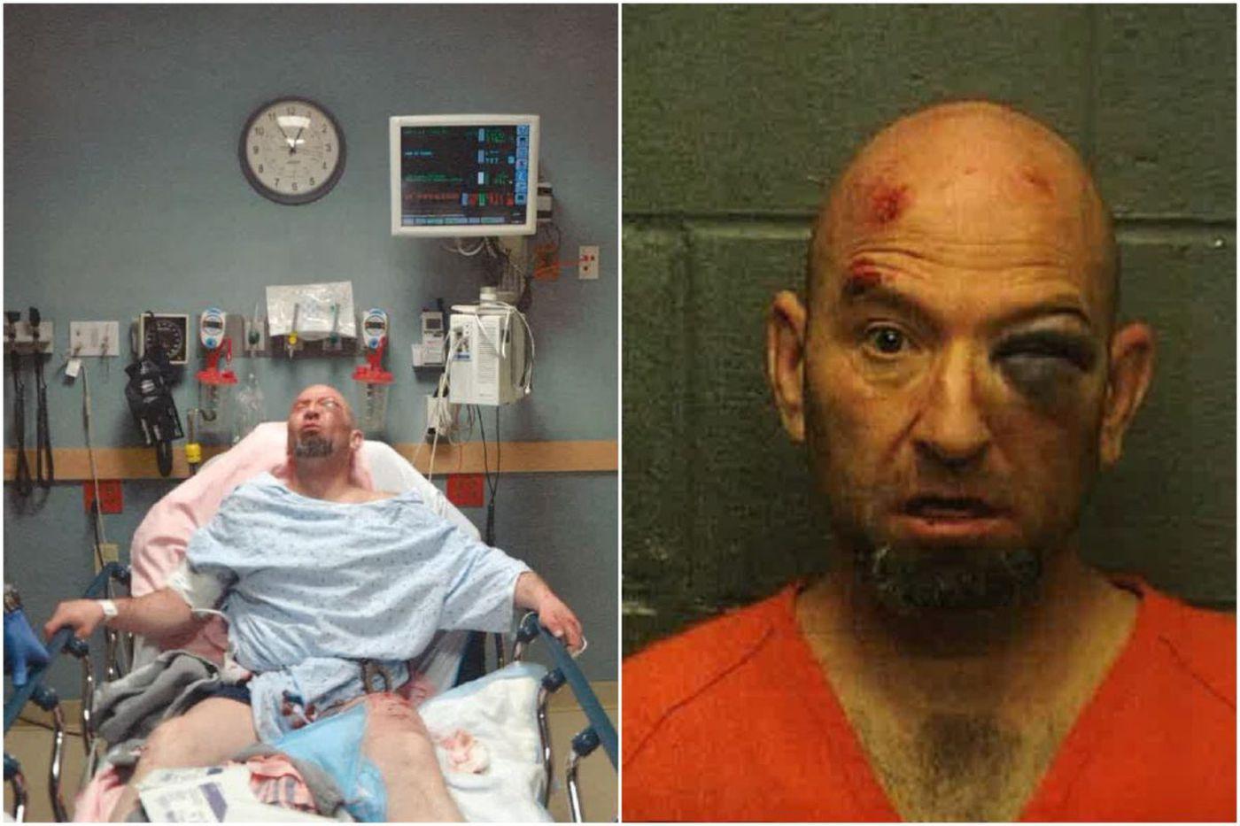 Lawsuit: Atlantic City police use excessive force, K9s in brutal arrest