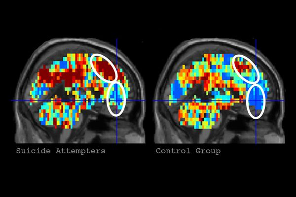 Researchers look to brain images to predict who will attempt suicide