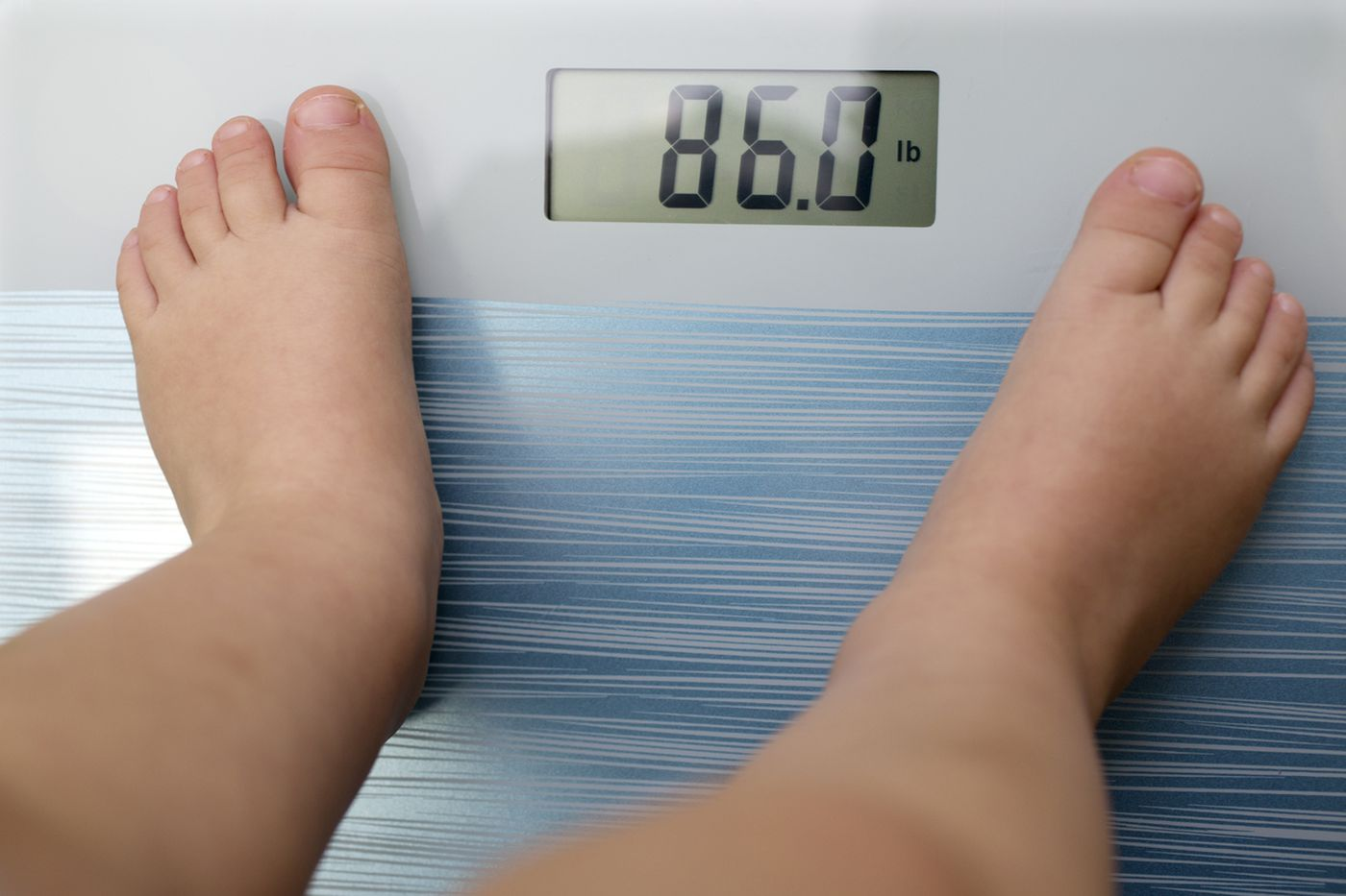 Children with autism, developmental delays at higher risk for obesity